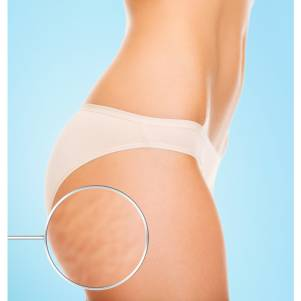 cellulite-treatment